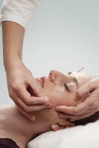 Annie Jenkins Facial Rejuvenation Acupuncture